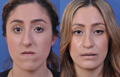 Before & After Photos Orthognathic Surgery Glendale CA ...