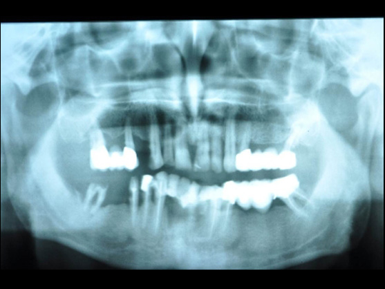 dental implants imaging