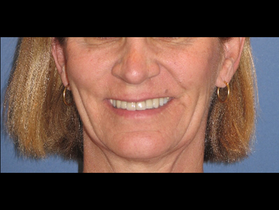 dental implants for seniors glendale ca