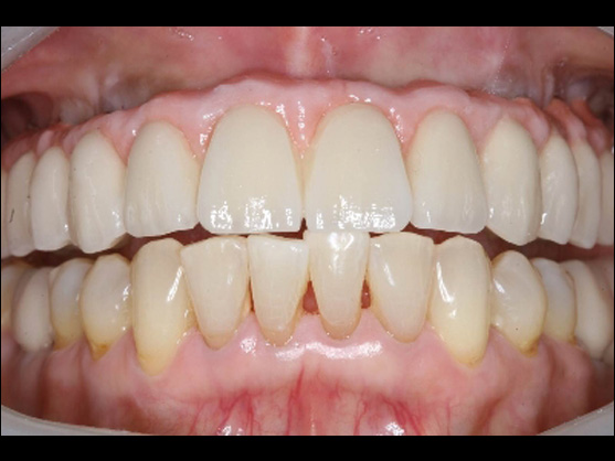 dental implants results glendale ca