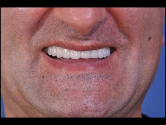 tooth implant glendale ca