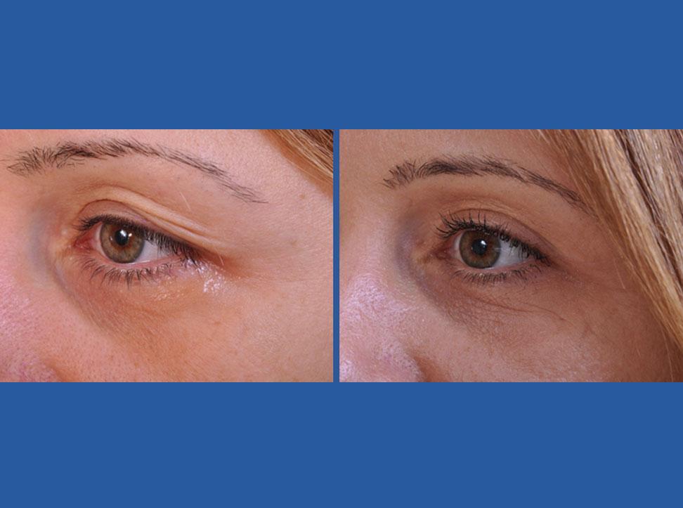Before Amp After Photos Blepharoplasty Eyelid Surgery