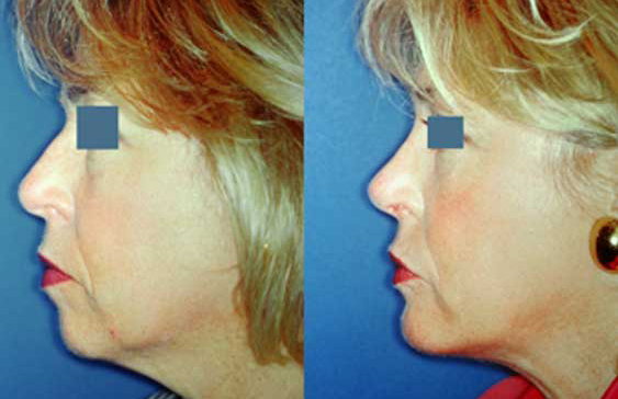 brow-and-forehead-lift