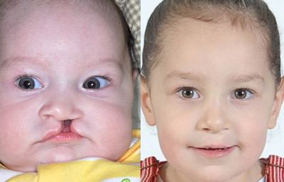 Before Amp After Photos Cleft Lip And Palate Glendale Ca
