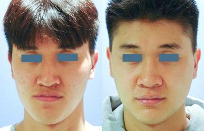 maxillofacial tmj surgery before and after