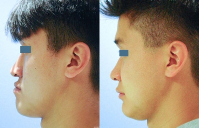 Before After Photos Orthognathic Surgery Glendale Ca Cosmetic